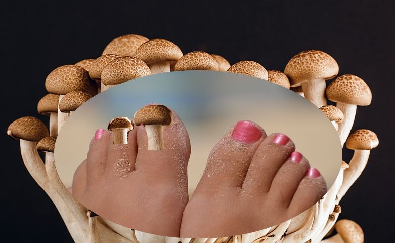 mycose-soin-champignon-ongles-pieds